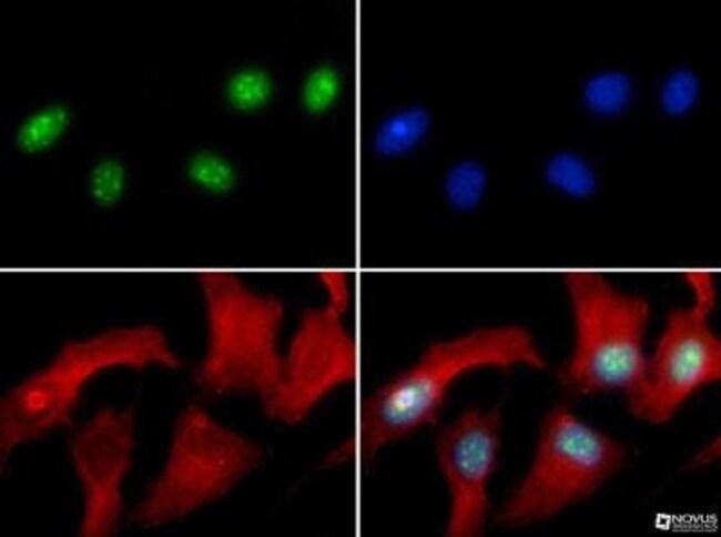 anti-Histone H3 (Asym-dimethyl Arg8), Polyclonal, Novus Biologicals:Antibodies:Primary